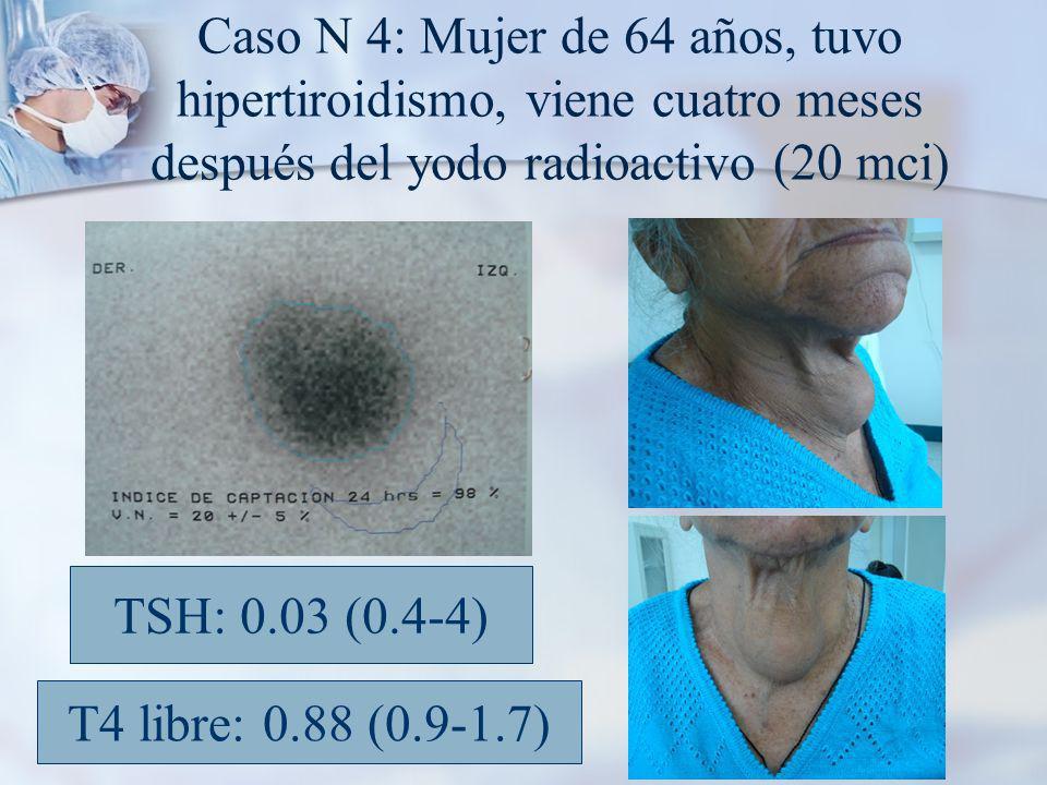 Caso N 4: Mujer de 64 años, tuvo hipertiroidismo, viene cuatro meses después del yodo radioactivo (20 mci)