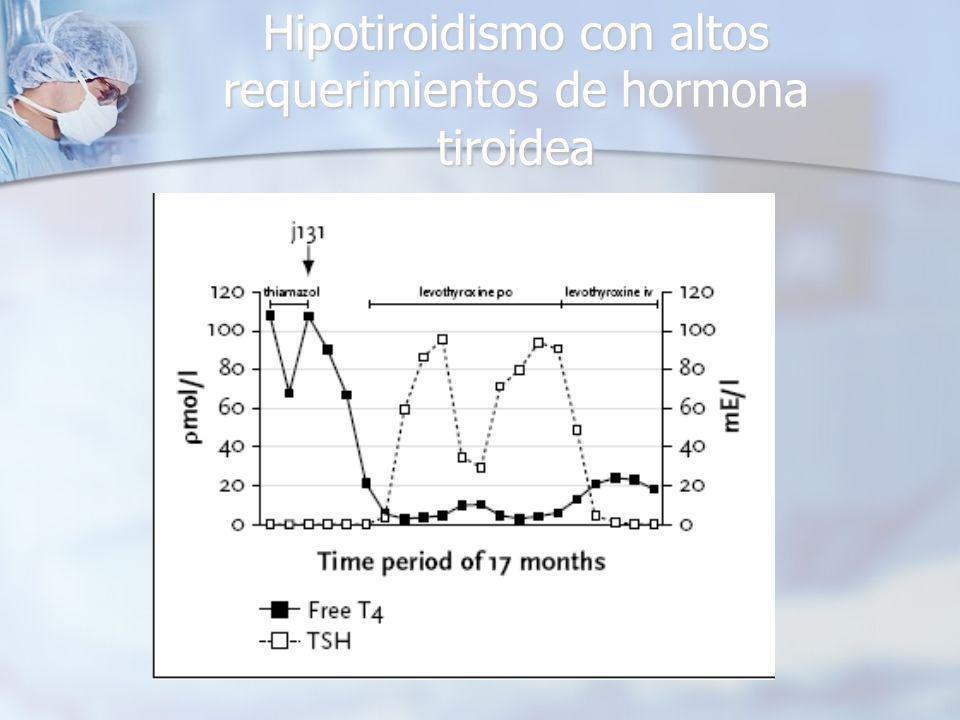 Hipotiroidismo con altos requerimientos de hormona tiroidea