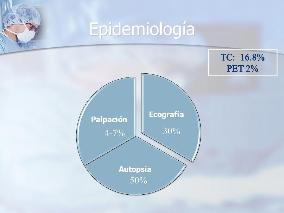 Epidemiología TC: 16.8% PET 2% 30% 4-7% 50% Ecografía Palpación