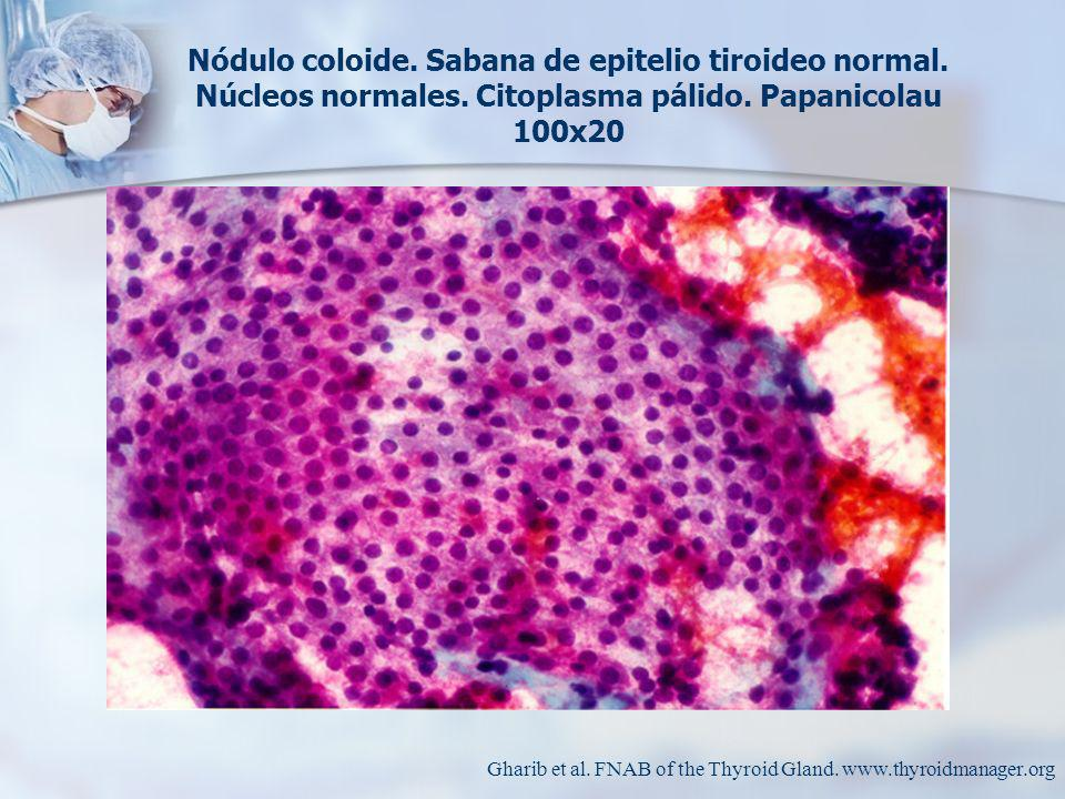 Nódulo coloide. Sabana de epitelio tiroideo normal. Núcleos normales