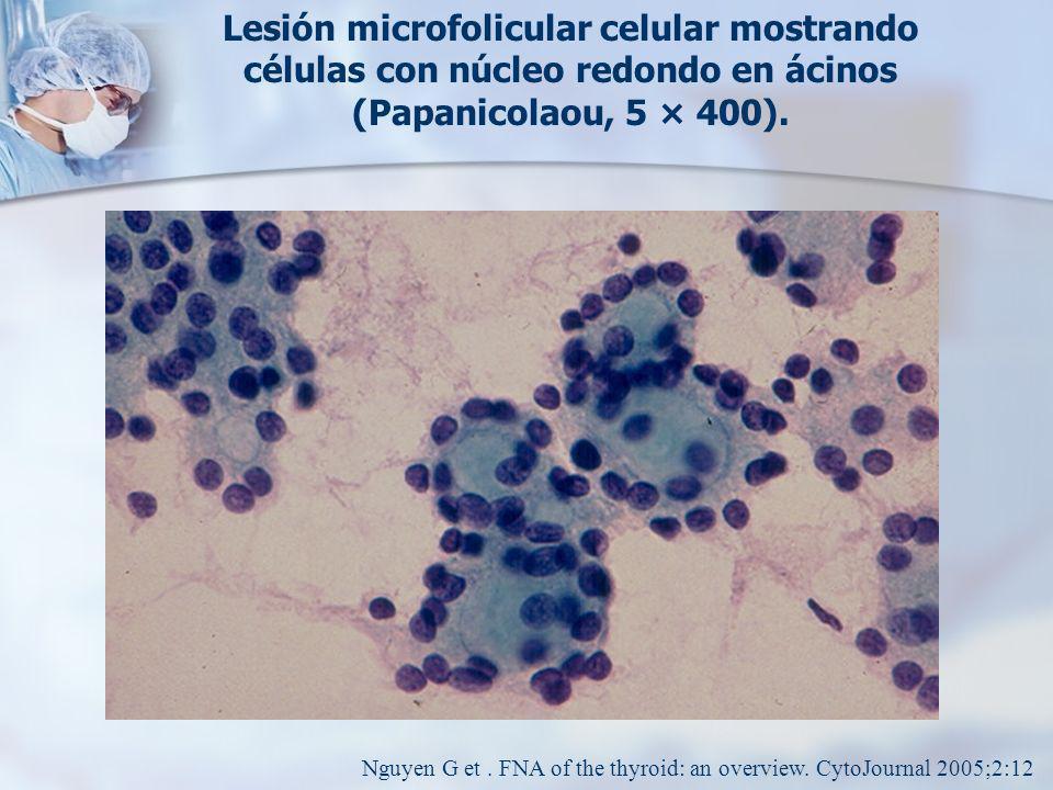 Lesión microfolicular celular mostrando células con núcleo redondo en ácinos (Papanicolaou, 5 × 400).
