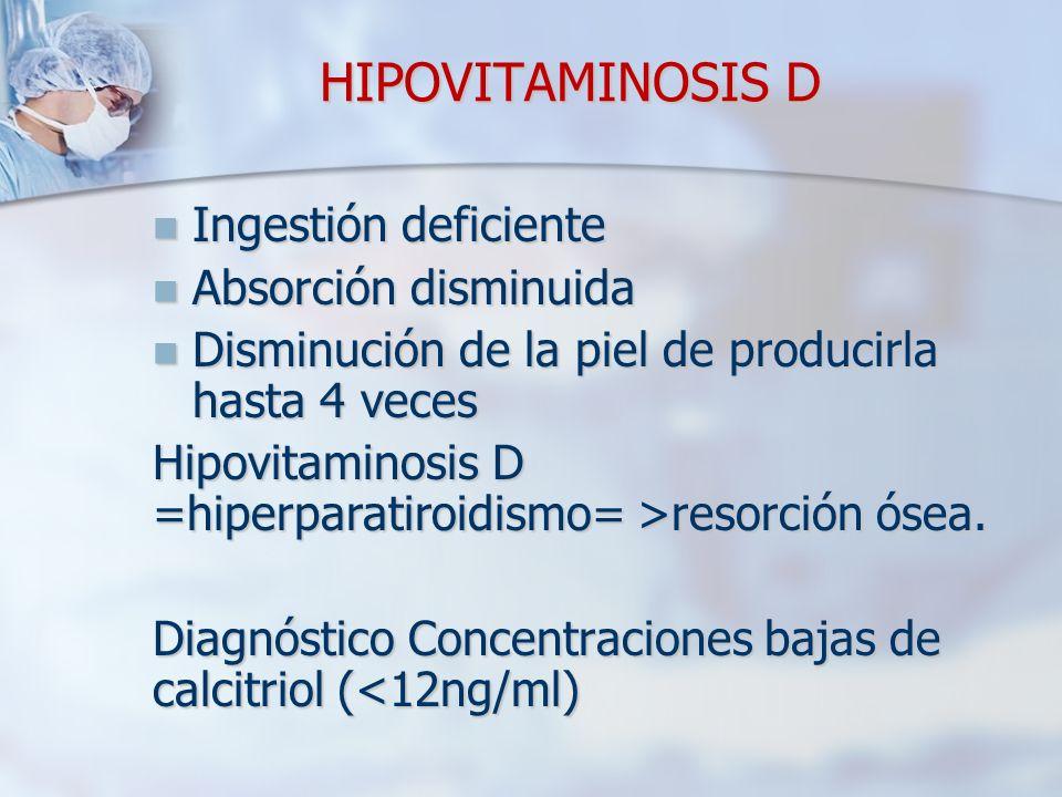 HIPOVITAMINOSIS D Ingestión deficiente Absorción disminuida