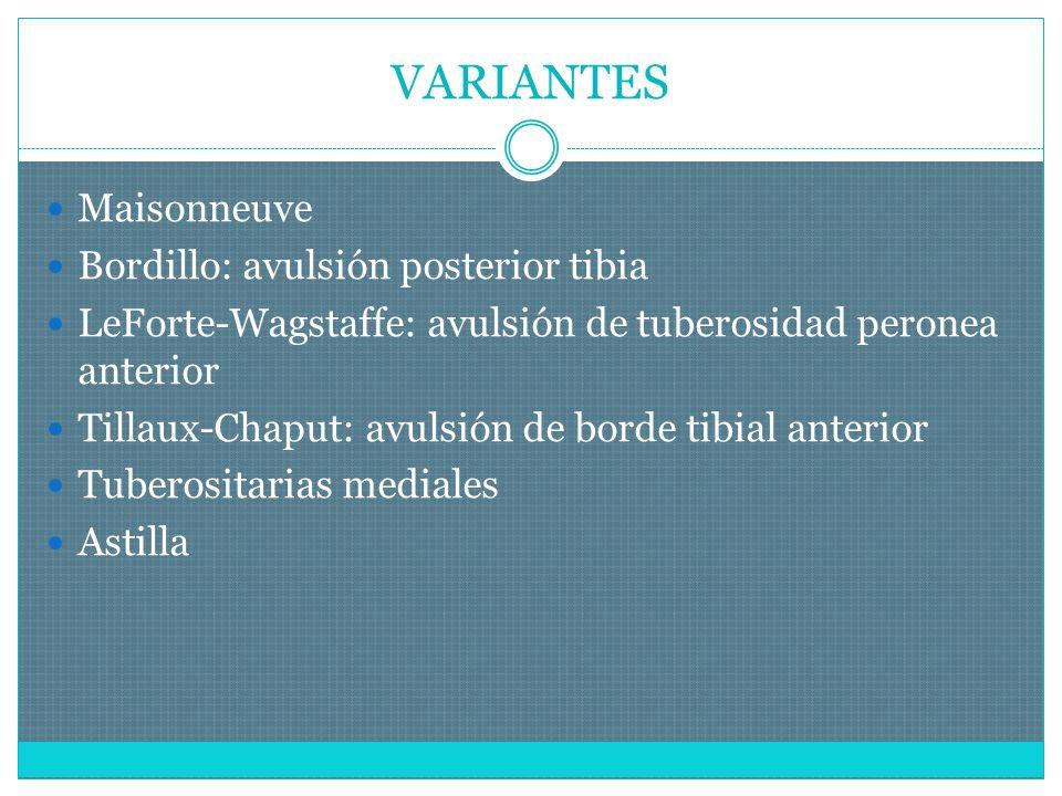 VARIANTES Maisonneuve Bordillo: avulsión posterior tibia