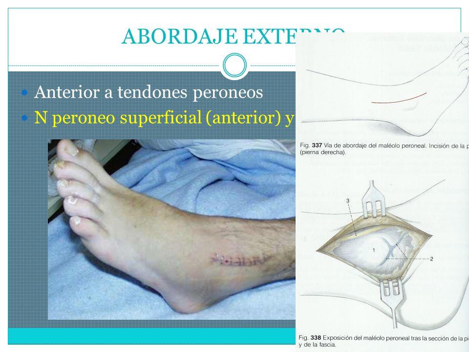 ABORDAJE EXTERNO Anterior a tendones peroneos