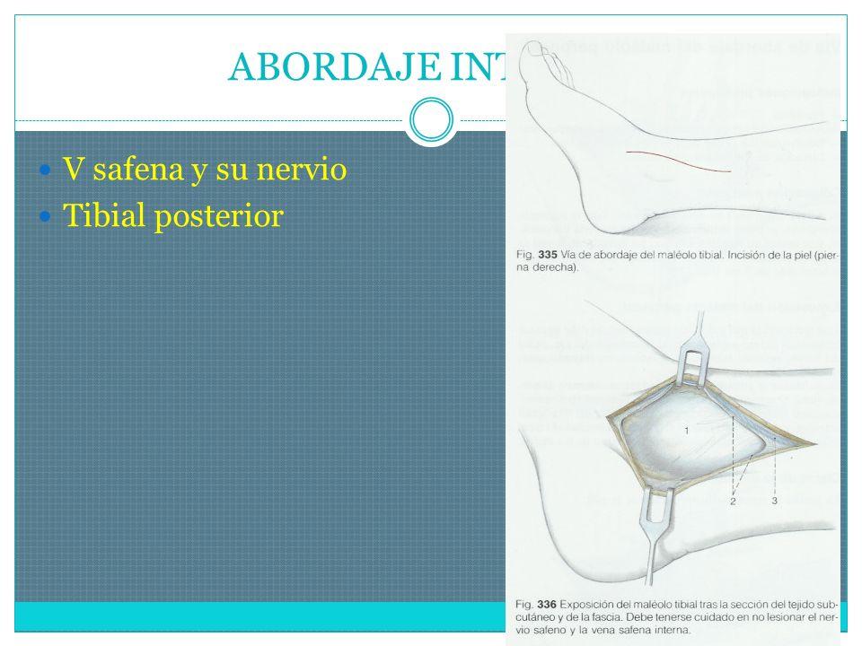 ABORDAJE INTERNO V safena y su nervio Tibial posterior