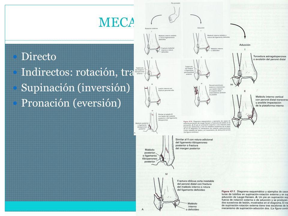 MECANISMOS Directo Indirectos: rotación, traslación o axiales