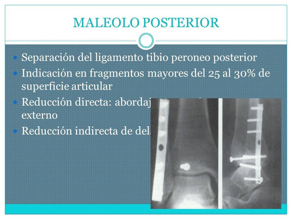 MALEOLO POSTERIOR Separación del ligamento tibio peroneo posterior