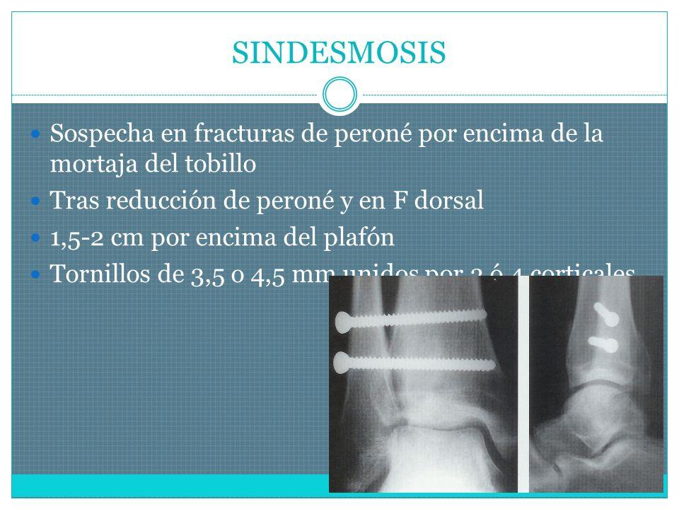 SINDESMOSIS Sospecha en fracturas de peroné por encima de la mortaja del tobillo. Tras reducción de peroné y en F dorsal.