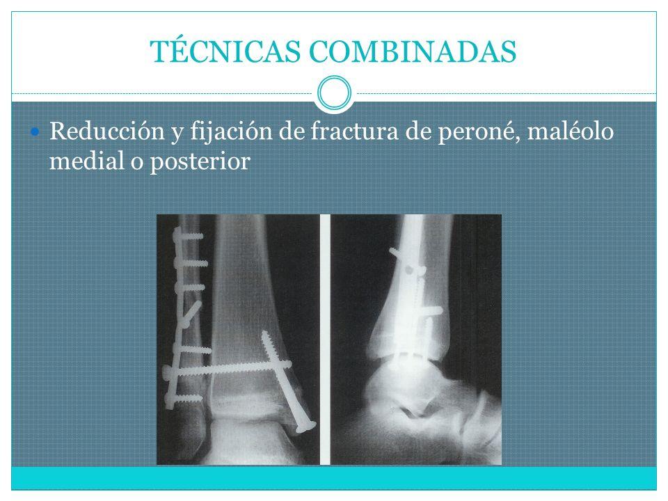 TÉCNICAS COMBINADAS Reducción y fijación de fractura de peroné, maléolo medial o posterior