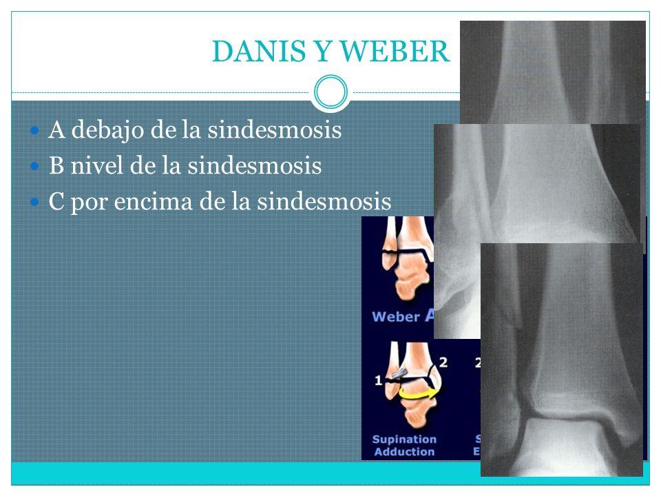 DANIS Y WEBER A debajo de la sindesmosis B nivel de la sindesmosis