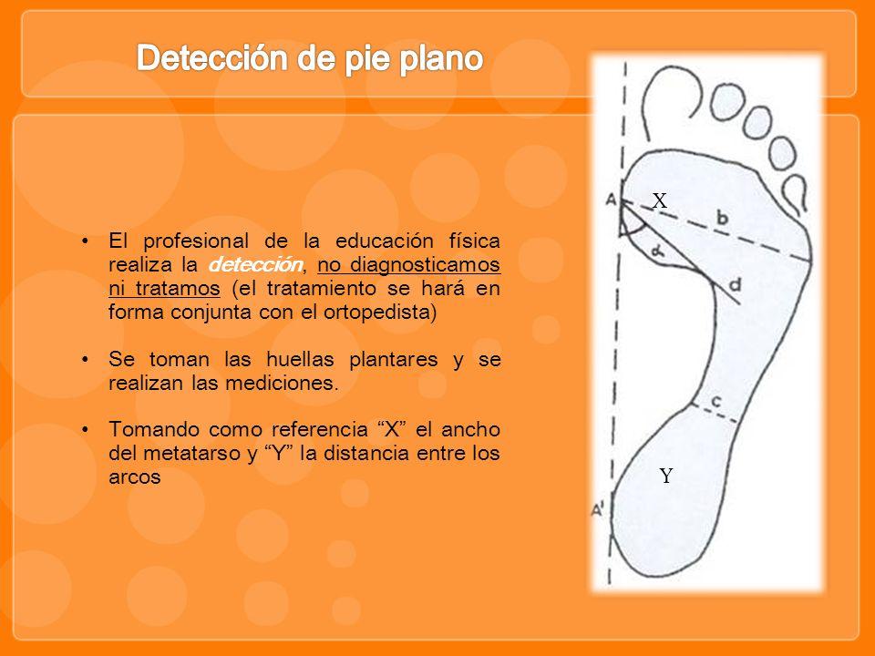 Detección de pie plano X