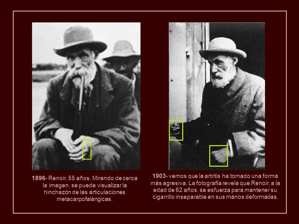 1903- vemos que la artritis ha tomado una forma más agresiva