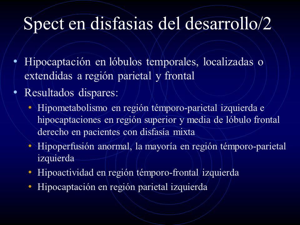 Spect en disfasias del desarrollo/2