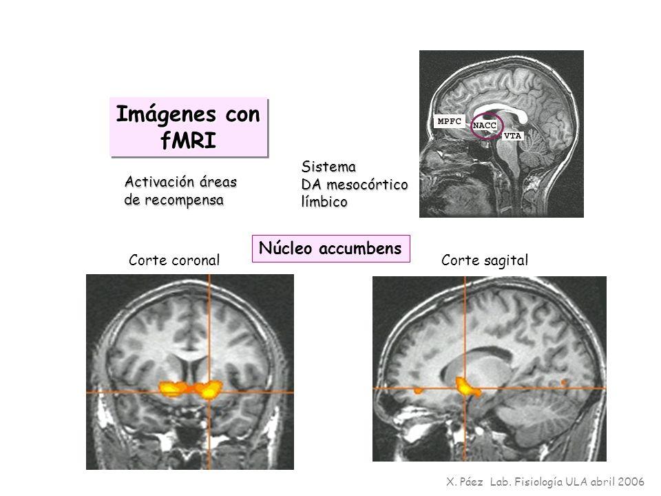 Imágenes con fMRI Núcleo accumbens Sistema DA mesocórtico límbico