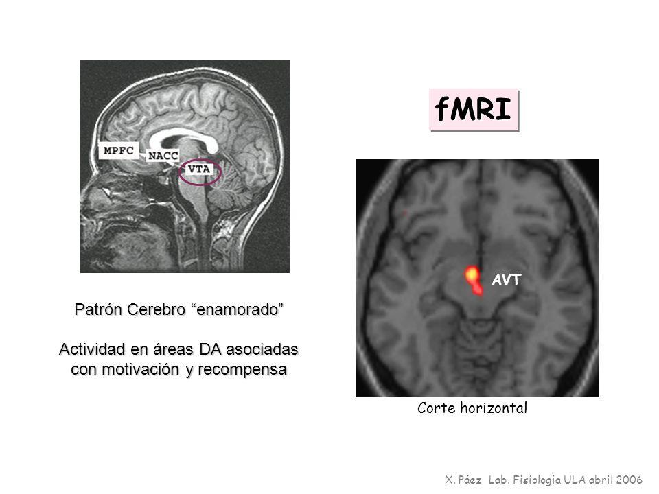 fMRI Patrón Cerebro enamorado Actividad en áreas DA asociadas
