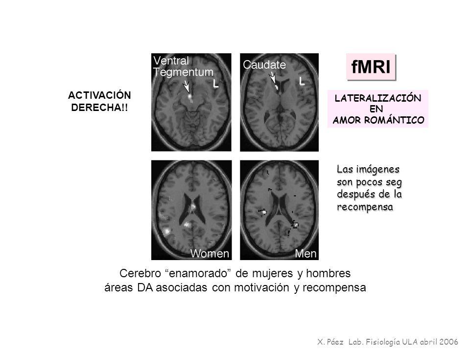 fMRI Cerebro enamorado de mujeres y hombres