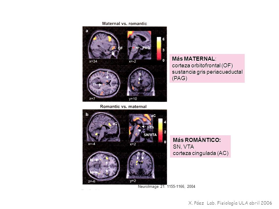 corteza orbitofrontal (OF) sustancia gris periacueductal (PAG)