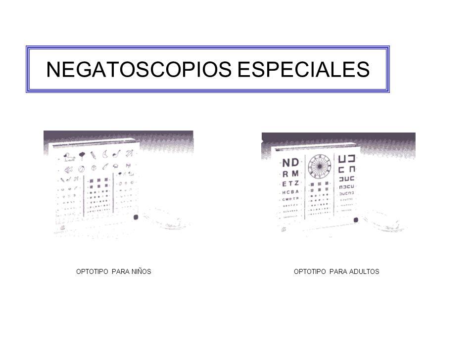 NEGATOSCOPIOS ESPECIALES