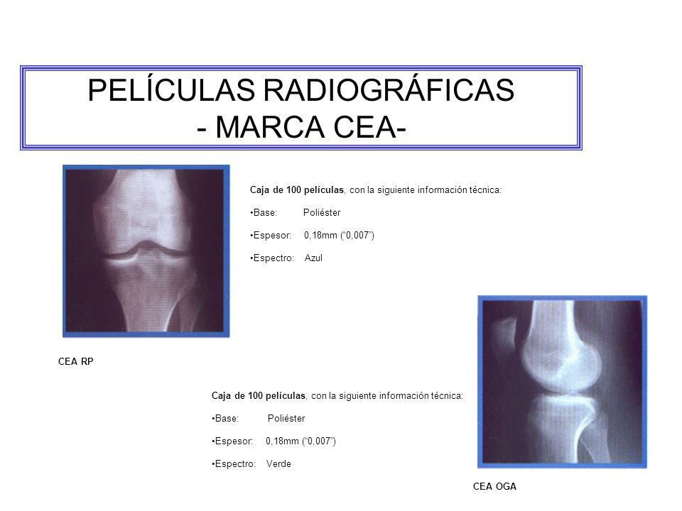 PELÍCULAS RADIOGRÁFICAS - MARCA CEA-
