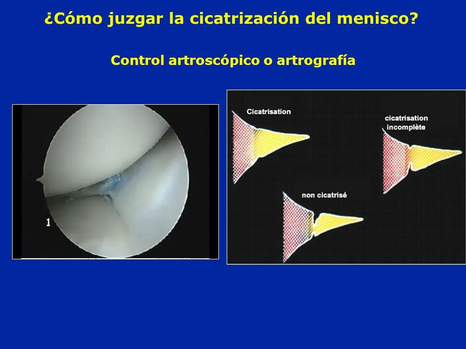 Control artroscópico o artrografía