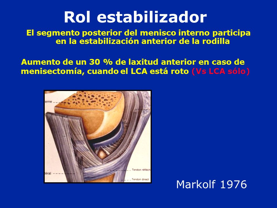Rol estabilizador Markolf 1976