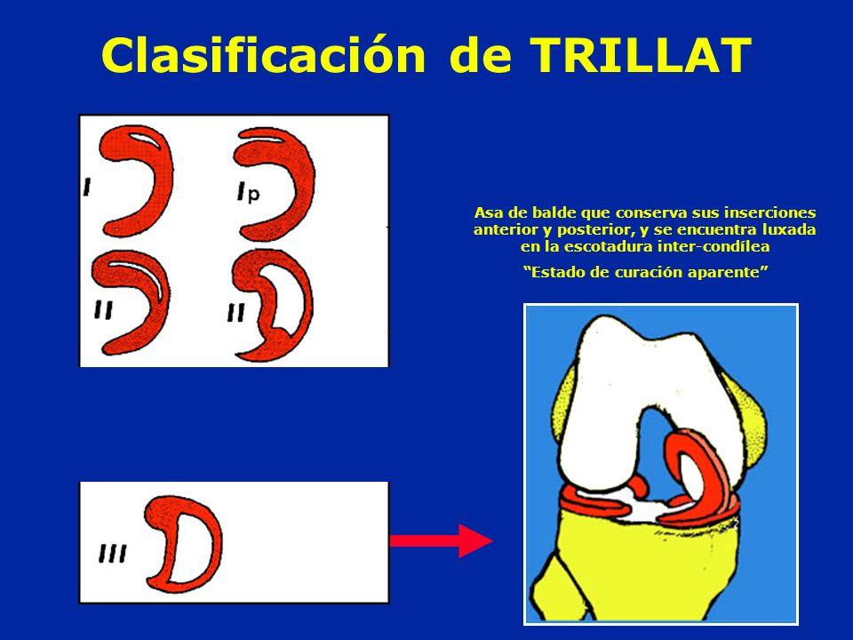 Clasificación de TRILLAT