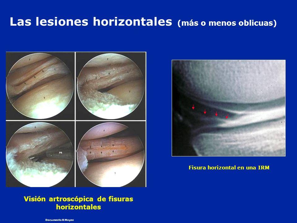 Las lesiones horizontales (más o menos oblicuas)