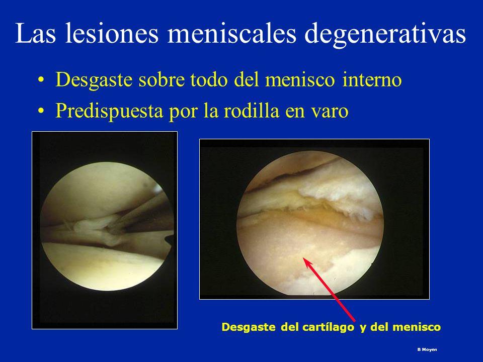 Las lesiones meniscales degenerativas