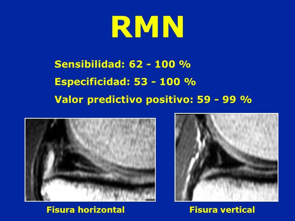 RMN Sensibilidad: 62 - 100 % Especificidad: 53 - 100 %