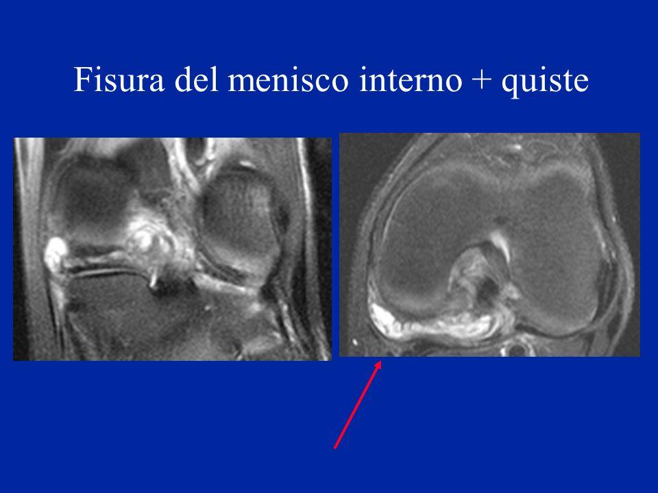 Fisura del menisco interno + quiste