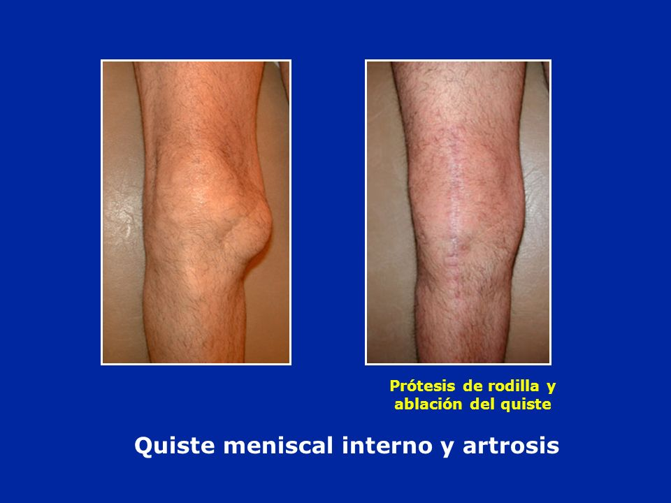 Quiste meniscal interno y artrosis