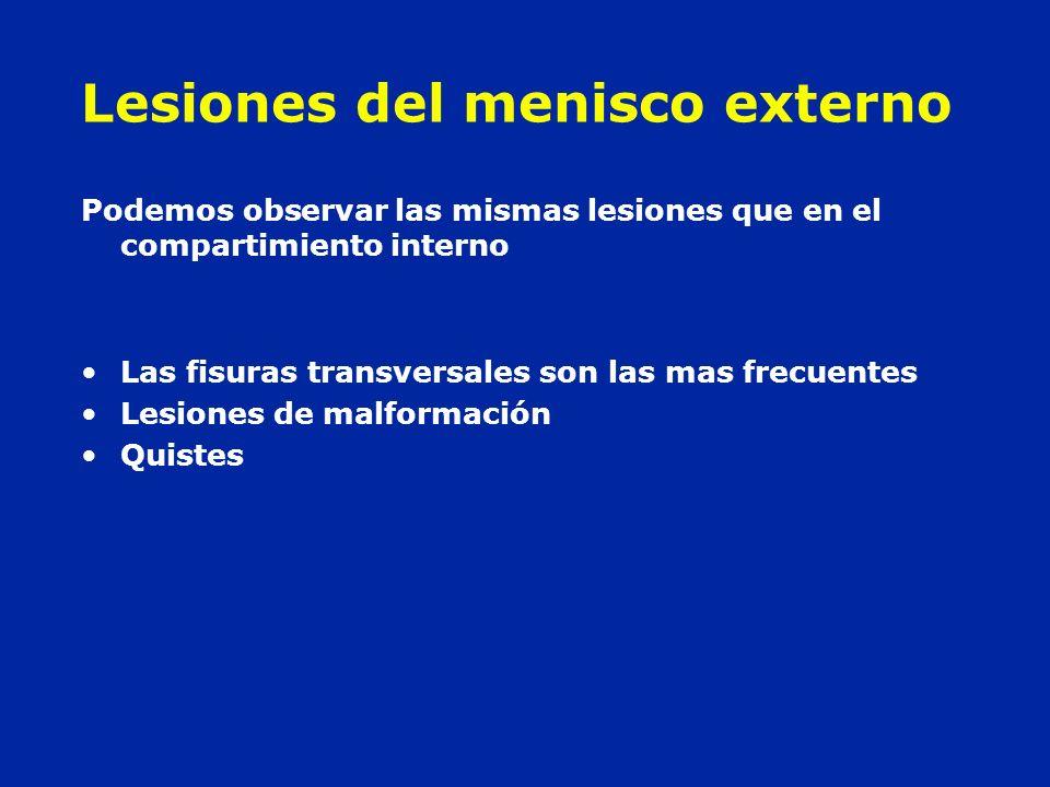 Lesiones del menisco externo