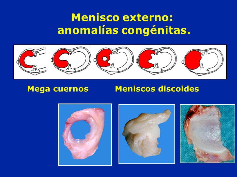Menisco externo: anomalías congénitas.