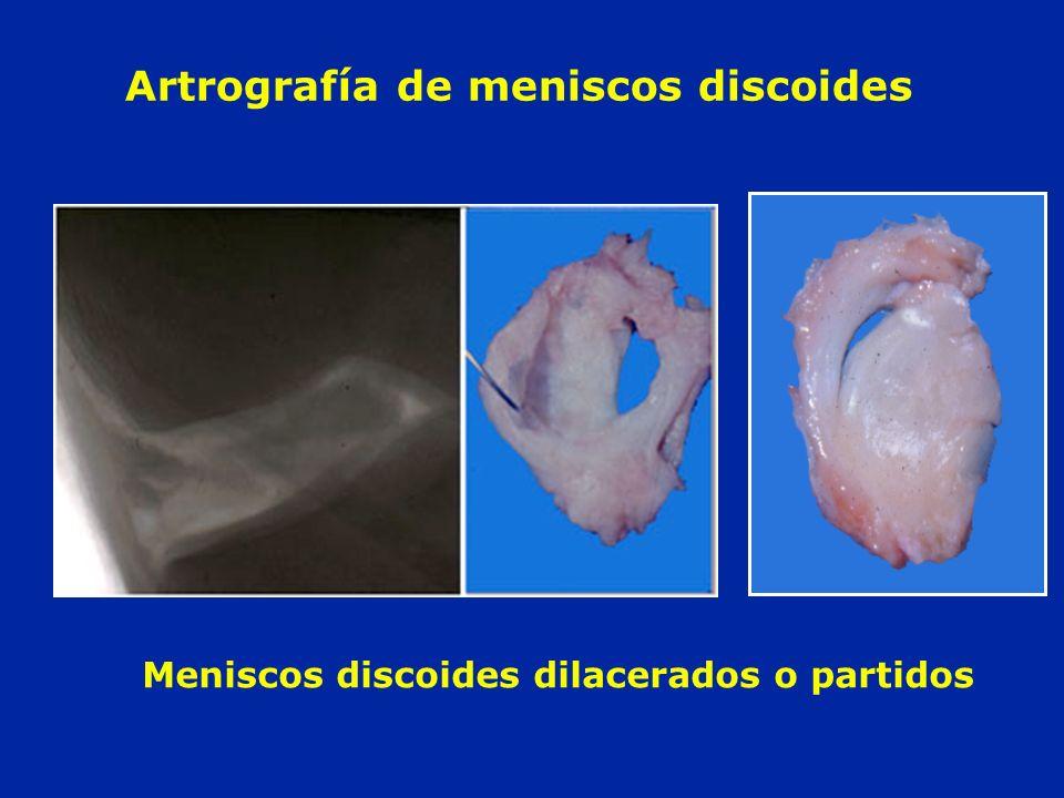 Artrografía de meniscos discoides