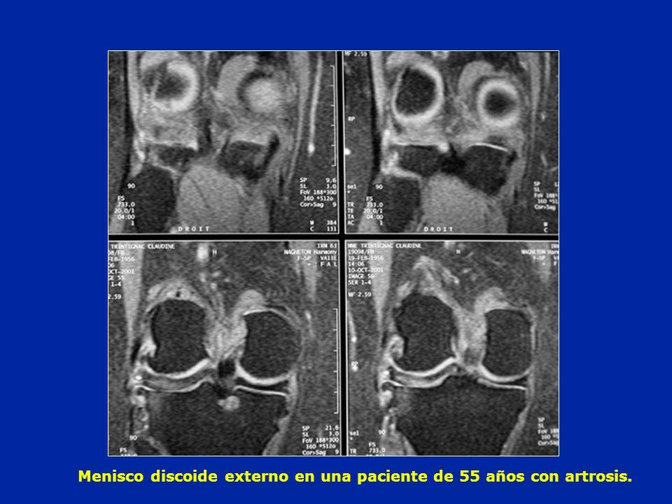 Menisco discoide externo en una paciente de 55 años con artrosis.