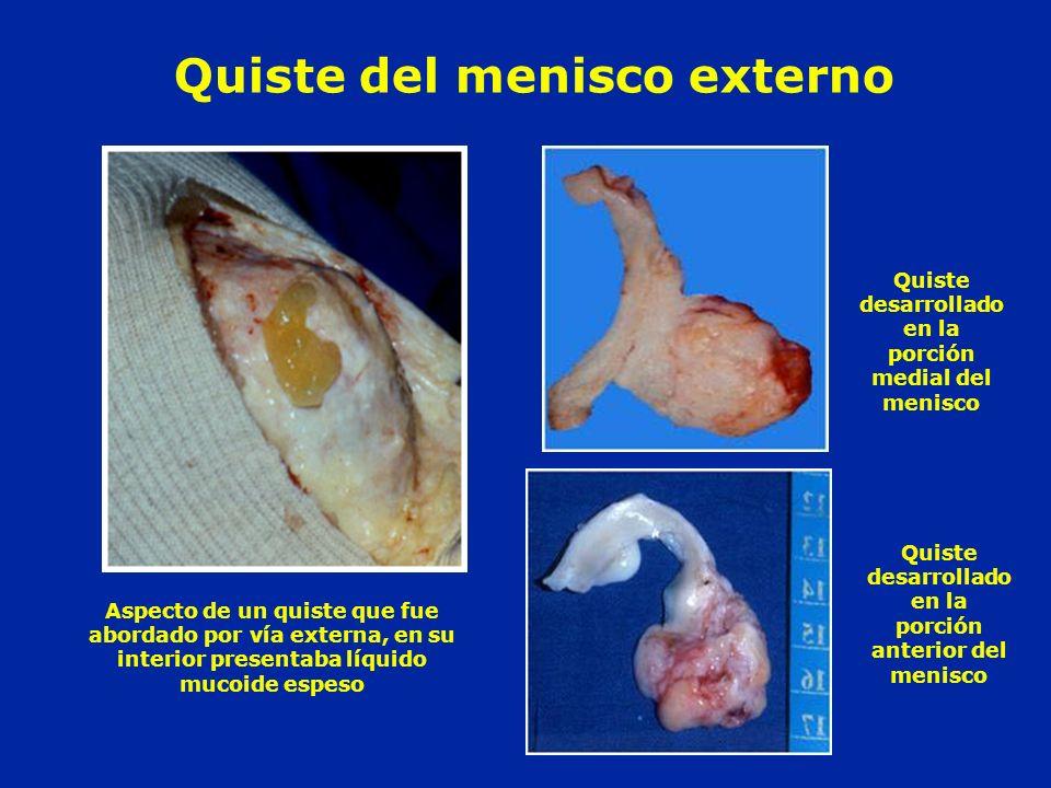 Quiste del menisco externo