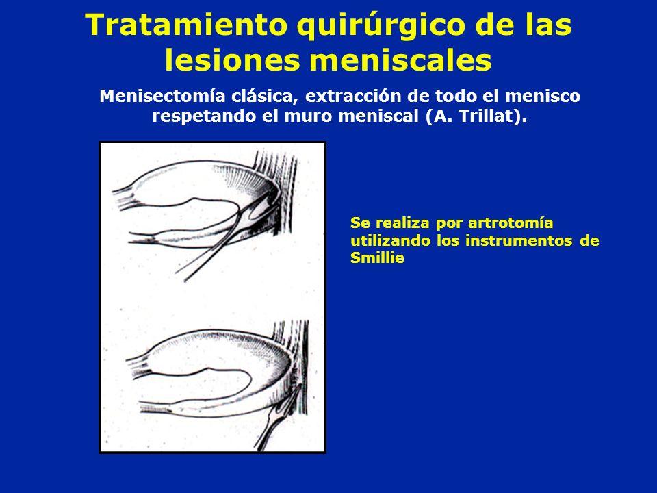 Tratamiento quirúrgico de las lesiones meniscales
