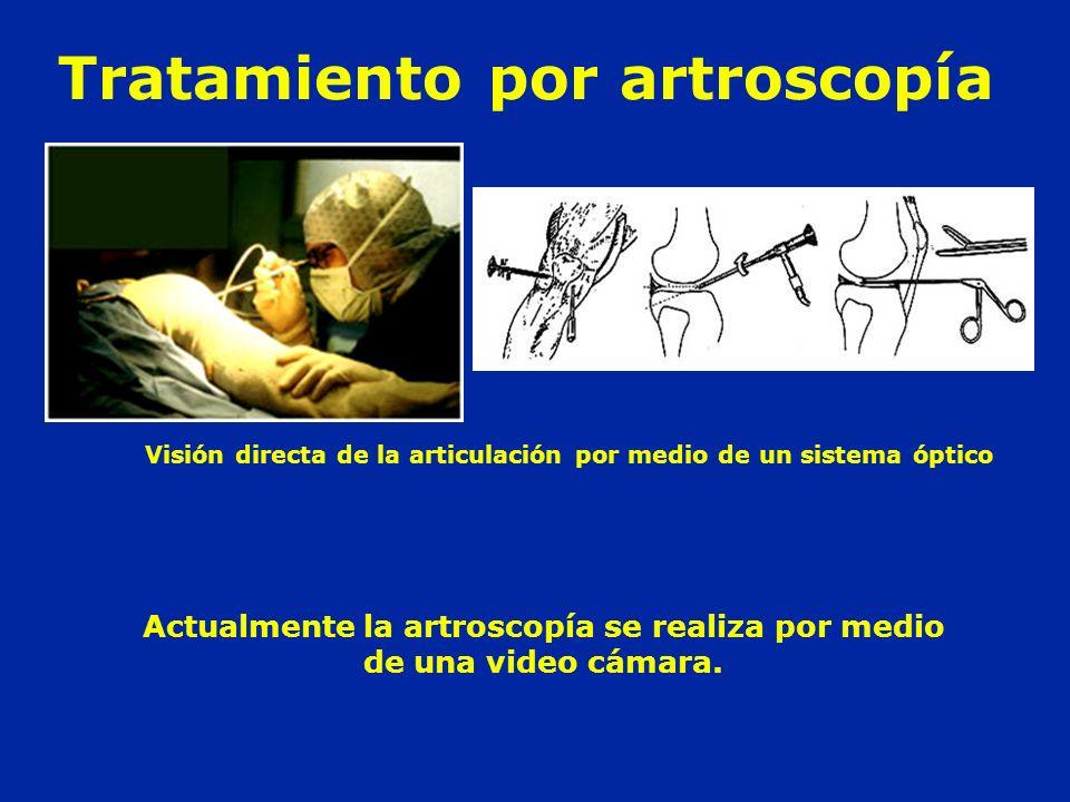 Tratamiento por artroscopía