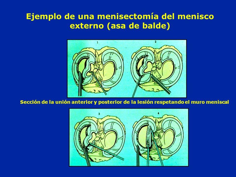Ejemplo de una menisectomía del menisco externo (asa de balde)