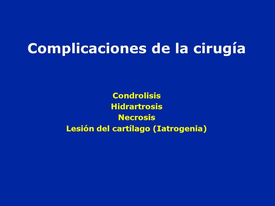 Complicaciones de la cirugía Lesión del cartílago (Iatrogenia)