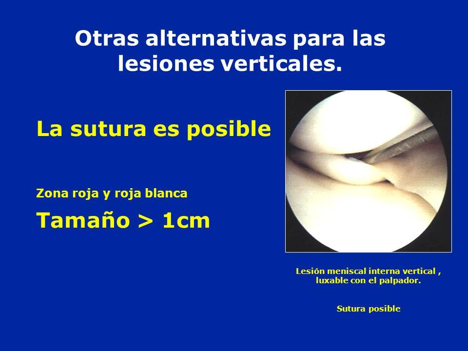 Otras alternativas para las lesiones verticales.