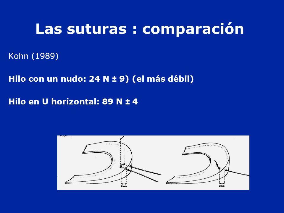 Las suturas : comparación