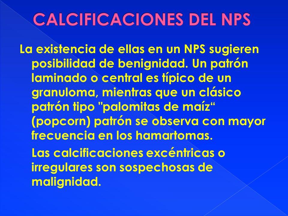 CALCIFICACIONES DEL NPS