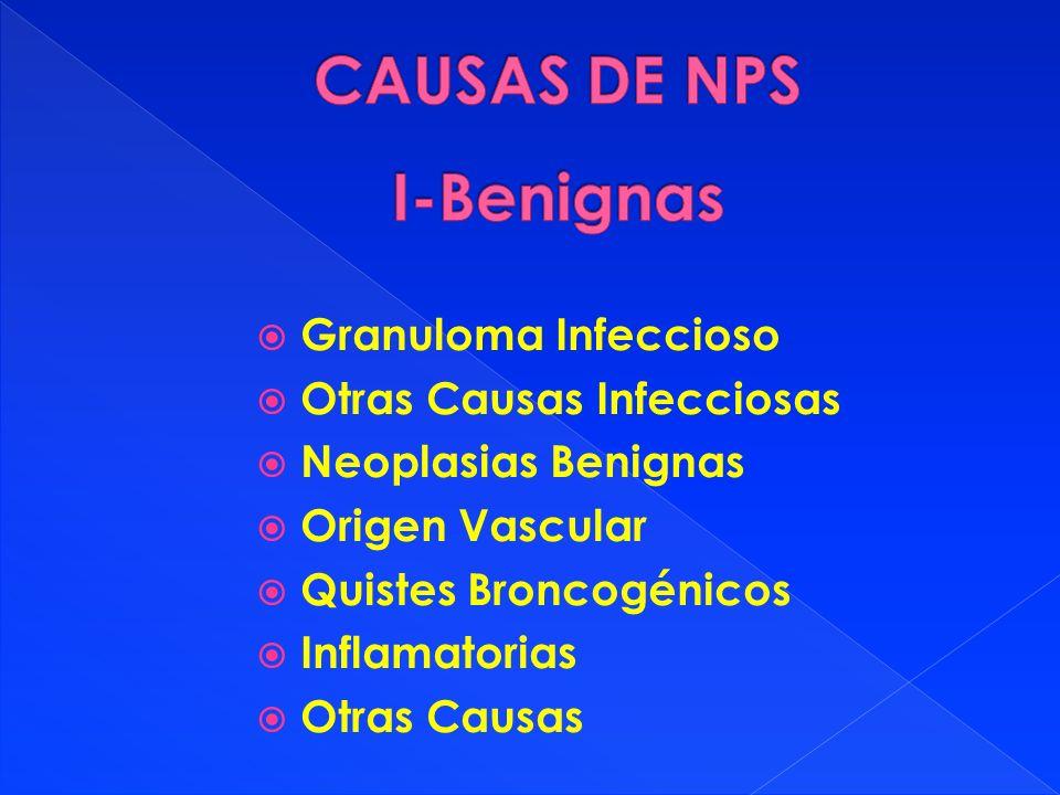 CAUSAS DE NPS I-Benignas