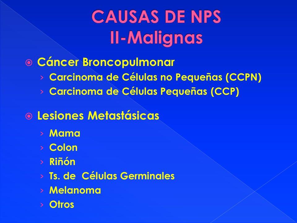 CAUSAS DE NPS II-Malignas