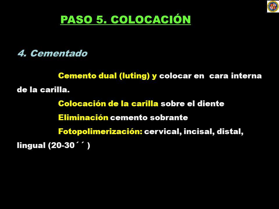 PASO 5. COLOCACIÓN 4. Cementado