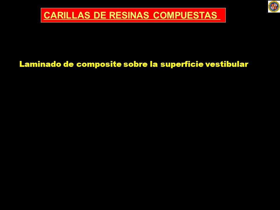 CARILLAS DE RESINAS COMPUESTAS