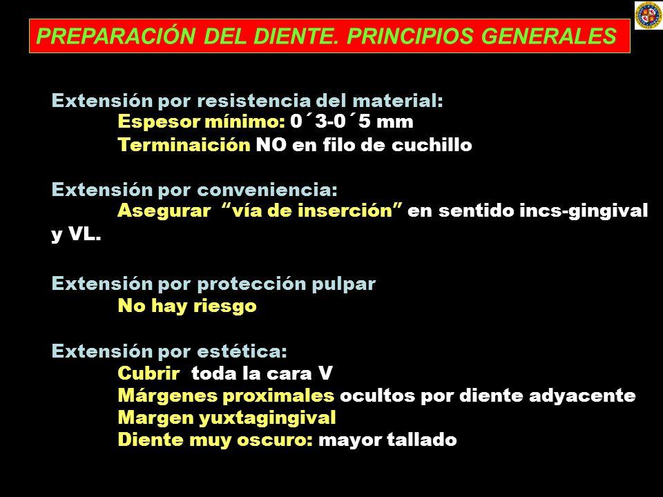PREPARACIÓN DEL DIENTE. PRINCIPIOS GENERALES