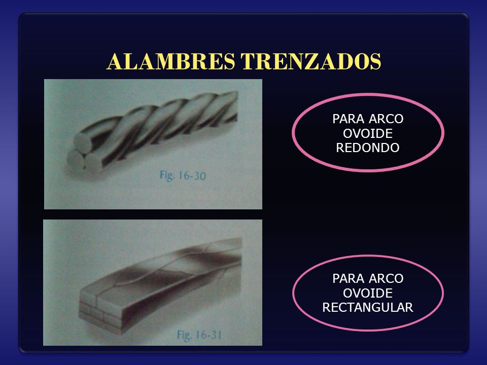 ALAMBRES TRENZADOS PARA ARCO OVOIDE REDONDO