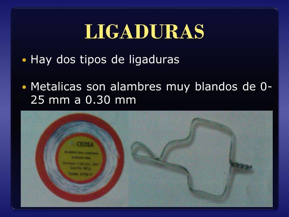 LIGADURAS Hay dos tipos de ligaduras